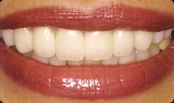 invisalign San Diego for a beautiful smile